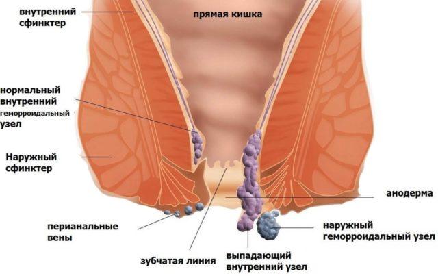 Всякое компрессионное воздействие на вены в прямой кишке провоцируют утолщение слизистой оболочки внутри заднего прохода