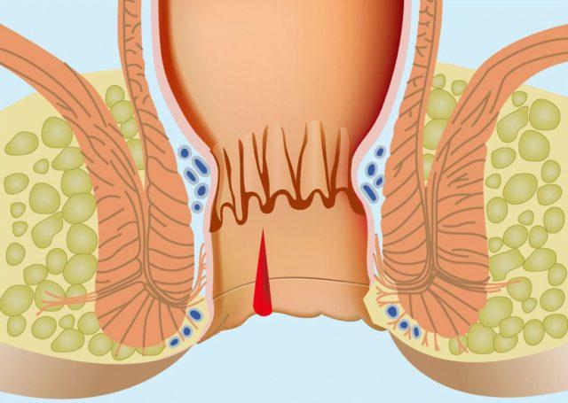 Течение болезни сопровождается расширением венозных сосудов, формированием наружных и внутренних геморроидальных узлов и нередко осложняется кровотечением из прямой кишки
