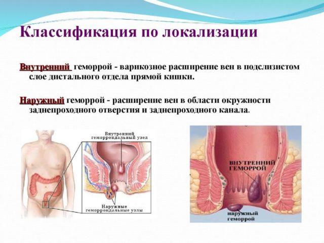 В это время возникает тромбоз геморроидального узла