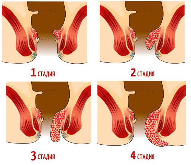 Внутренний часто протекает бессимптомно вплоть до выпадения геморроидальных узлов