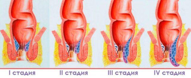 По факту это воспаление вен прямой кишки и анального отверстия