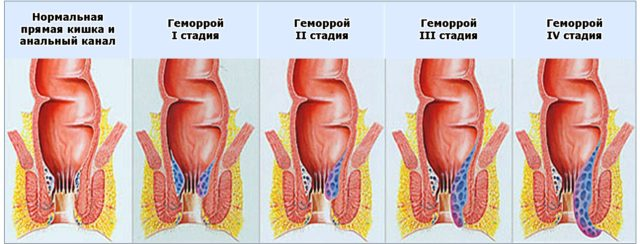 В течении хронического геморроя выделяют четыре стадии