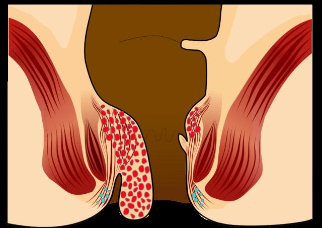 Проявляется кровотечениями, зудом, жжением в области ануса, увеличением и выпадением геморроидальных узлов