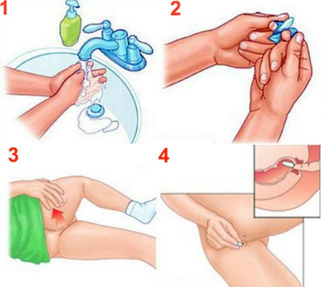 Вводить ректальный суппозиторий желательно после совершения акта дефекации и проведения гигиенических мероприятий