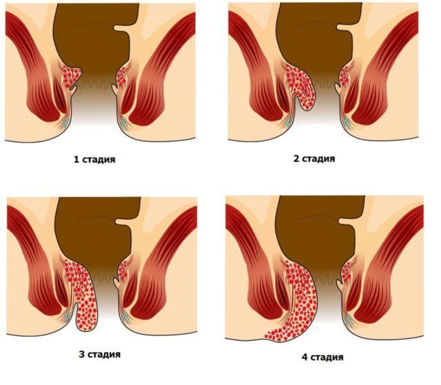 Главный симптом данного заболевания – наличие в области ануса небольшого размера узелков (шишек), вызывающих стойкое чувство инородного тела в заднем проходе
