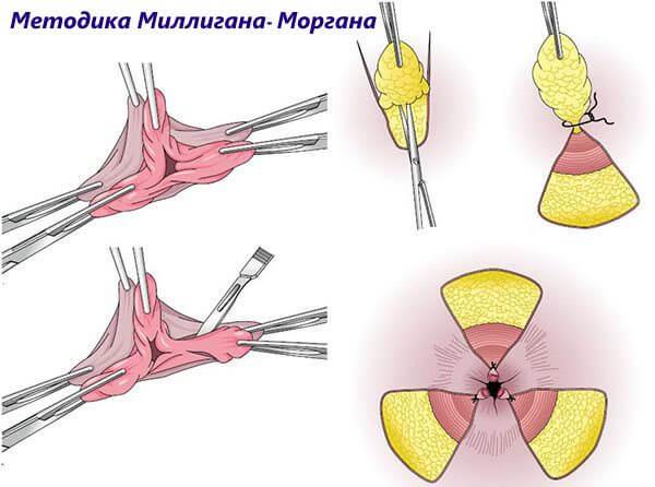 Ножку геморроидального узла обязательно прошивают нитью кетгута
