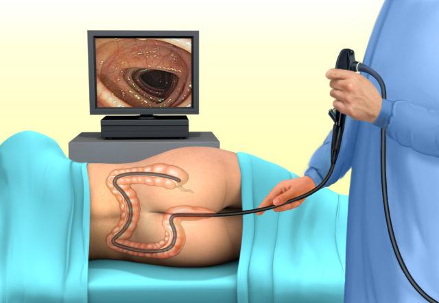 Хоть основную работу по изучению структуры кишечника выполняет томограф и процедура безболезненна, дискомфорт и вздутие от смеси бария присутствуют