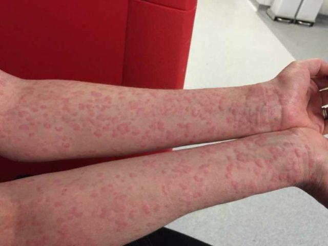 Кроме того, производители предупреждают, что у лиц, склонных к аллергии, возможны нежелательные реакции