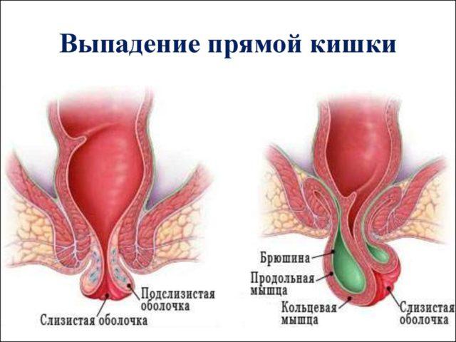 В типологической классификации различают грыжевой и инвагинационный варианты ректального пролапса